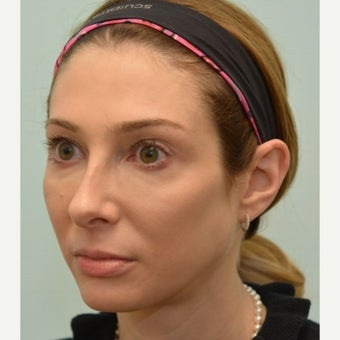 31 year old woman treated with Voluma for under eye circles and contouring of cheeks