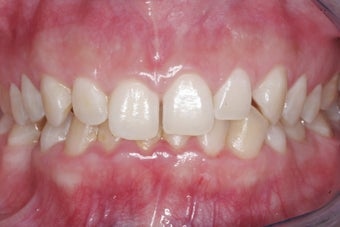 Braces, Gingivectomy, Bonding, Porcelain Crowns, Implant before 469005