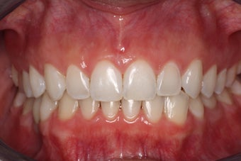 Braces, Gingivectomy, Bonding, Porcelain Crowns, Implant after 469005