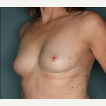 45-54 year old woman treated with Breast Augmentation before 3520769