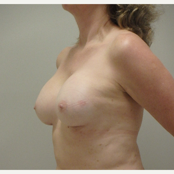 45-54 year old woman treated with Breast Augmentation after 3520769