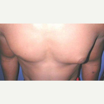 25-34 year old man treated with left Male Breast Reduction  (Gynecomastia) before 3013143