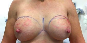 45-54 year old woman treated with Fat Transfer  after 2280023