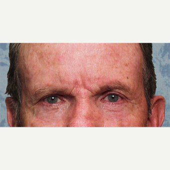 Eyelid Surgery after 3126888