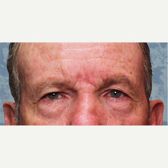 Eyelid Surgery before 3126888