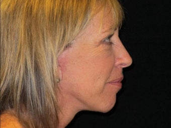 55-64 year old woman treated with Facelift, quad blepharoplasty 2509167