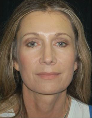 Brow Lift with Facial Fat Grafting after 660513
