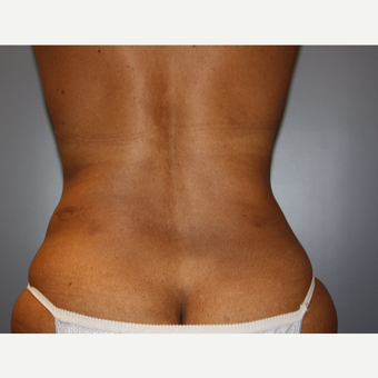 45-54 year old woman treated with Liposuction after 3683155
