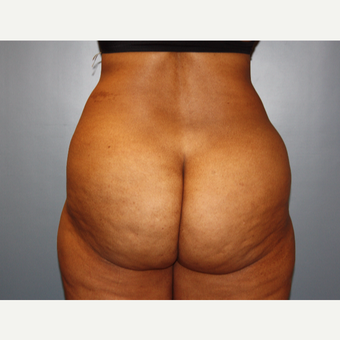 45-54 year old woman treated with Liposuction before 3683155