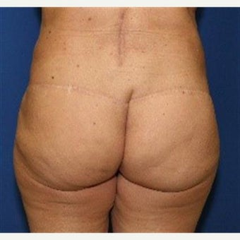 56 year old woman treated with Butt Lift and Buttock Augmentation with Fat Grafts (Brazilian Lift)