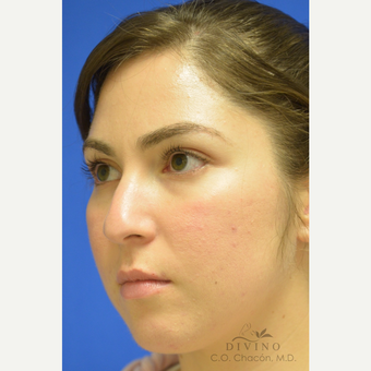 25-34 year old woman treated with Rhinoplasty before 3391963