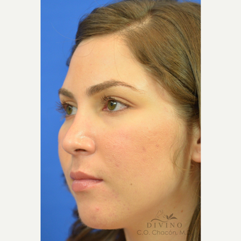 25-34 year old woman treated with Rhinoplasty after 3391963