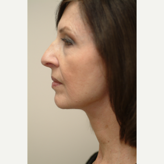 55-64 year old woman treated with Neck Lift after 3763977