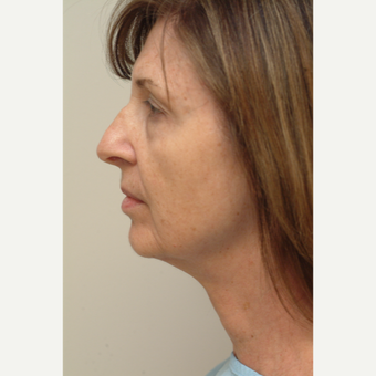 55-64 year old woman treated with Neck Lift before 3763977