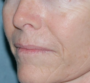 Laser Resurfacing for Wrinkles before 658911