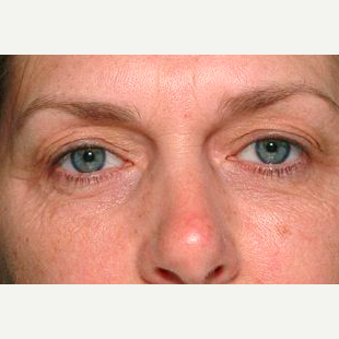 Woman treated with Thermage after 1585401