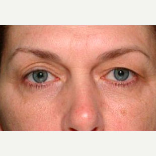 Woman treated with Thermage before 1585401