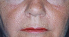 Laser Skin Resurfacing before 1405725