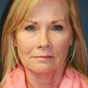 55-64 year old woman treated with Facelift before 3554109