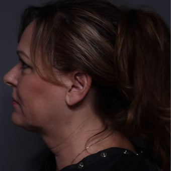55 year old woman treated with Kybella after 2225197