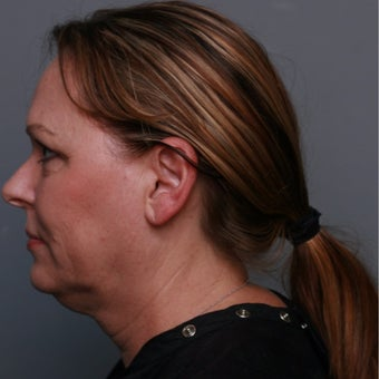 55 year old woman treated with Kybella before 2225197