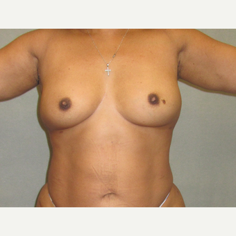 45-54 year old woman treated with Breast Augmentation before 3376811