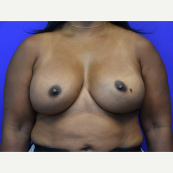 45-54 year old woman treated with Breast Augmentation after 3376811