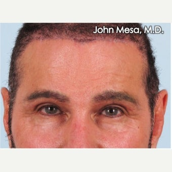 45-54 year old man treated with Endoscopic Biplanar Brow Lift