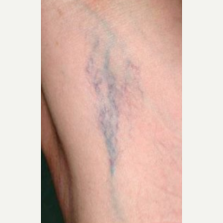 45-54 year old woman treated with Vein Treatment before 3499350