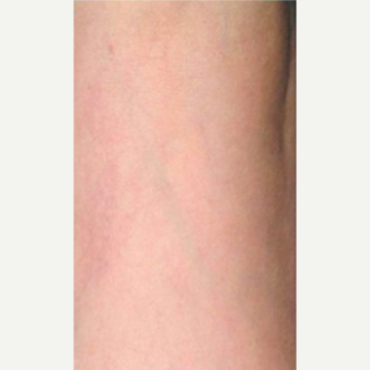 45-54 year old woman treated with Vein Treatment after 3499350