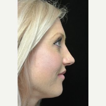 Scarless Closed Rhinoplasty after 3119057