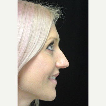 Scarless Closed Rhinoplasty before 3119057