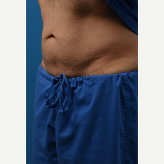 35-44 year old man treated with SculpSure after 3414123