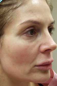 Lipo-augmentation of Face before 295940