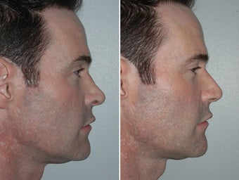 Revision Rhinoplasty after 229628