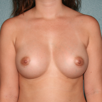 18-24 year old woman treated with Breast Augmentation after 3527253