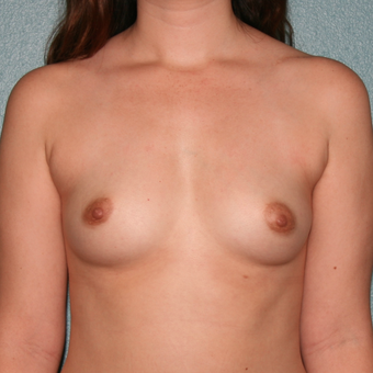 18-24 year old woman treated with Breast Augmentation before 3527253