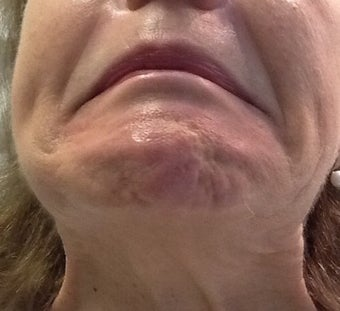 Botox for a 71 year-old woman with downturned corners of her mouth and a dimpled chin before 1469237