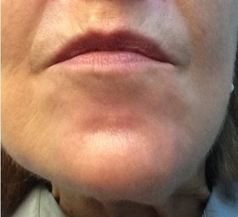 Botox for a 71 year-old woman with downturned corners of her mouth and a dimpled chin after 1469237
