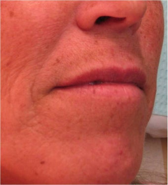 Juvederm to the upper lip before 77463