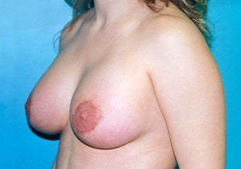Tuberous Breast Augmentation (Dual Plane) + Periareolar Mastopexy after 349482