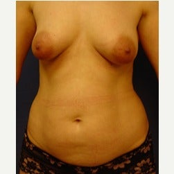35-44 year old woman treated with Liposuction before 2045065