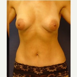 35-44 year old woman treated with Liposuction after 2045065
