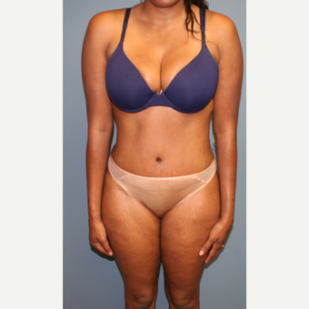 25-34 year old woman treated with Tummy Tuck after 3559019