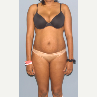 25-34 year old woman treated with Tummy Tuck before 3559019