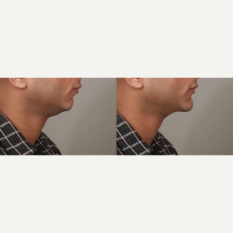 25-34 year old man treated with Chin Surgery before 3659187
