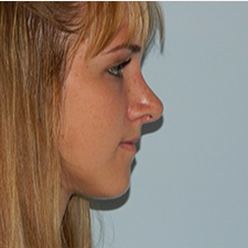 18-24 year old woman treated with Rhinoplasty after 3459383