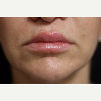 25-34 year old woman treated with Lip Augmentation after 3852394