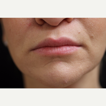 25-34 year old woman treated with Lip Augmentation before 3852394