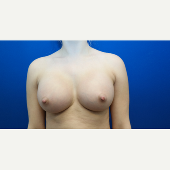 25-34 year old woman treated with Breast Augmentation after 3103008